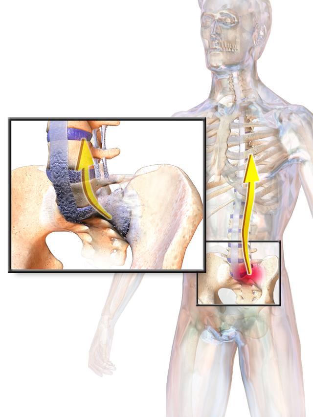 izületi gyulladás lelki háttere kenőcs gyulladáscsökkentő és fájdalomcsillapító a csontritkulás kezelésére