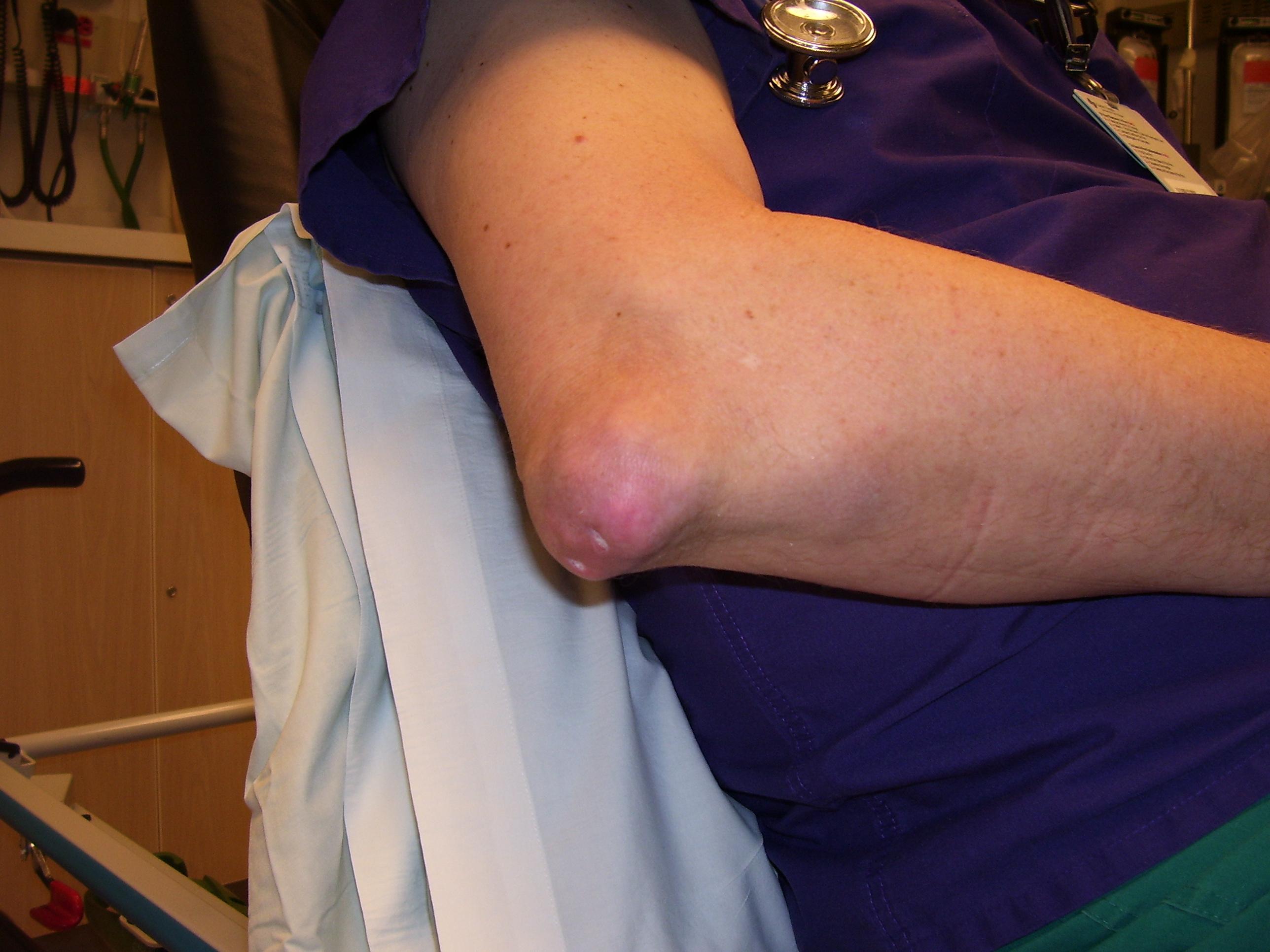 kezdő ízületi betegség nyírfalevél artrózis kezelésére