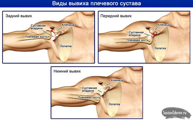 közös diszlokációk, hogyan kell kezelni a vállízület fáj, mit tehet