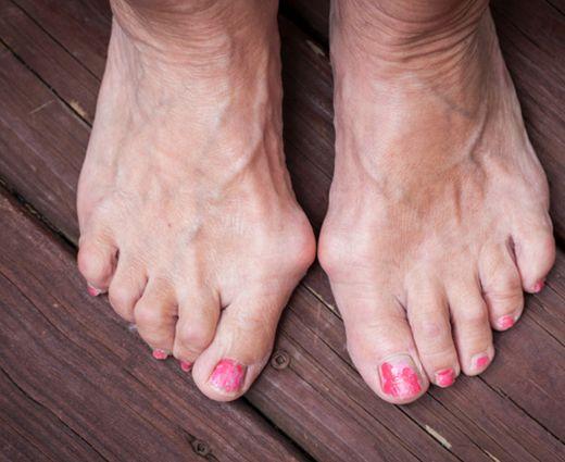 lábujj izületi gyulladás