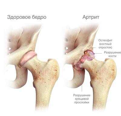 medence a csípő artrózisához a harmadik fokú ízületi gyulladás, mint a kezelés