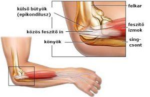 kötszer a térdízületen fájdalomra ideggyulladás a vállízület tünetei