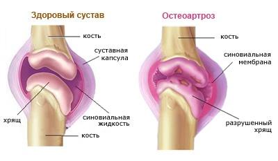 fájdalom a térdízületben és annak alatt