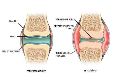 6 szokatlan ok, ami az osteoarthritis fájdalmát súlyosbíthatja - fájdalomportádort.hu