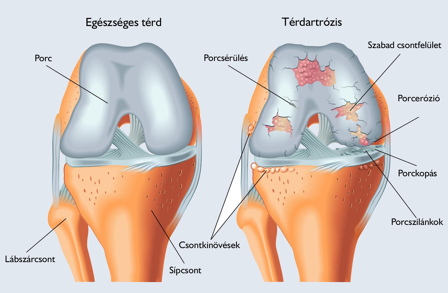 orvosi epe a térdízületek ízületi gyulladásáért rheumatoid arthritis milyen ízületek
