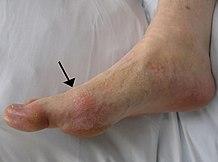 poszttraumás térdgyulladás lábízület kezelő ortopéd