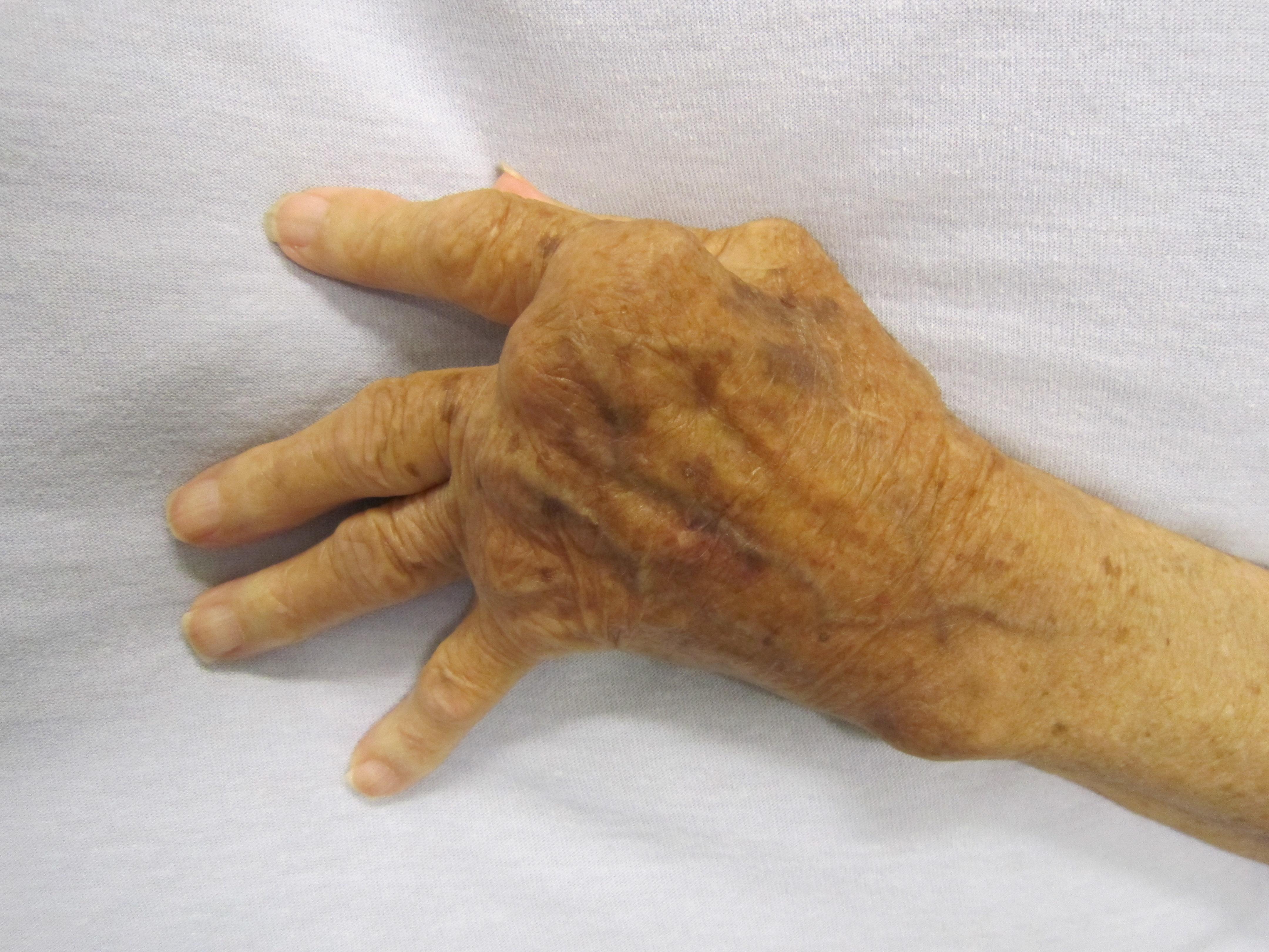 rheumatoid arthritis ízületi károsodásának képe tartós fájdalom a csípőízületben