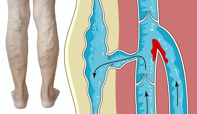 a térdízület oldalsó ágának sérülése 1 fokkal fájó lábízület futás közben