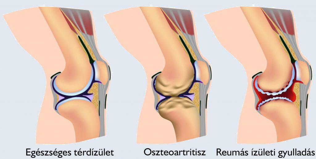 térd artritisz roham protein kezelés artrosis