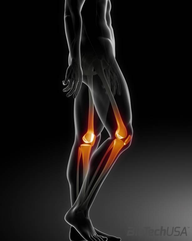 térd sérülések statisztikája