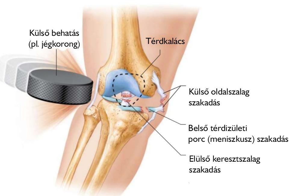 térdízület sérülés után ízületek duzzadnak a lábakon