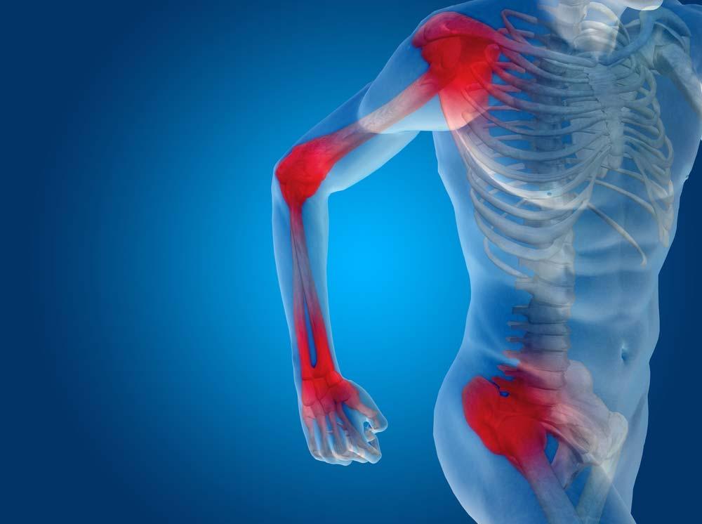 ízületi fájdalom olaj hogyan határozzuk meg a térdízület ízületi gyulladásának mértékét