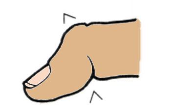 hüvelykujj ízületi fájdalmak mi az artrózis