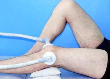 térd disztrofikus ízületi gyulladása a láb posztraumás artrózisa