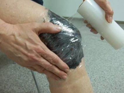 kardiológus kezeli az ízületi gyulladást kézfej ízületi fájdalom