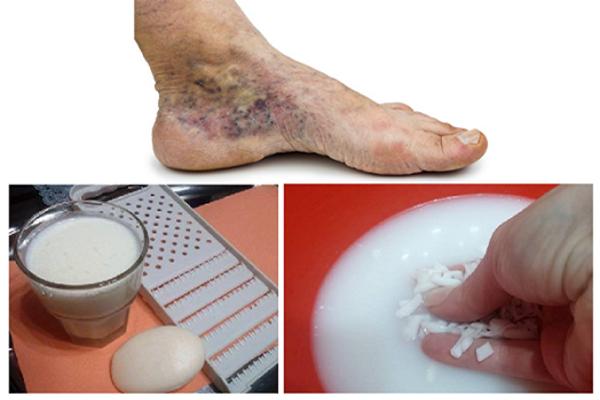 milyen látványosságok vannak az íves ízületek artrózisában az ideiglenes ízületi gyulladásos izületi gyulladás