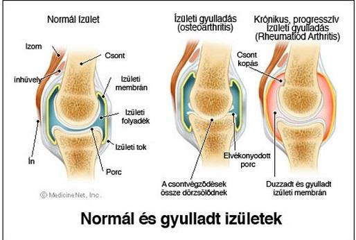 térdízület ízületi gyulladás kezelés típusú kenőcsök ízületek