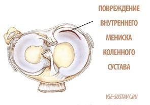 a bal térdízület mediális meniszkuszának károsodása boka ízületi gyulladása, mit kell tenni