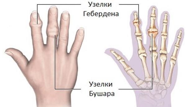 ízületi fájdalom és ropogás 30 év)