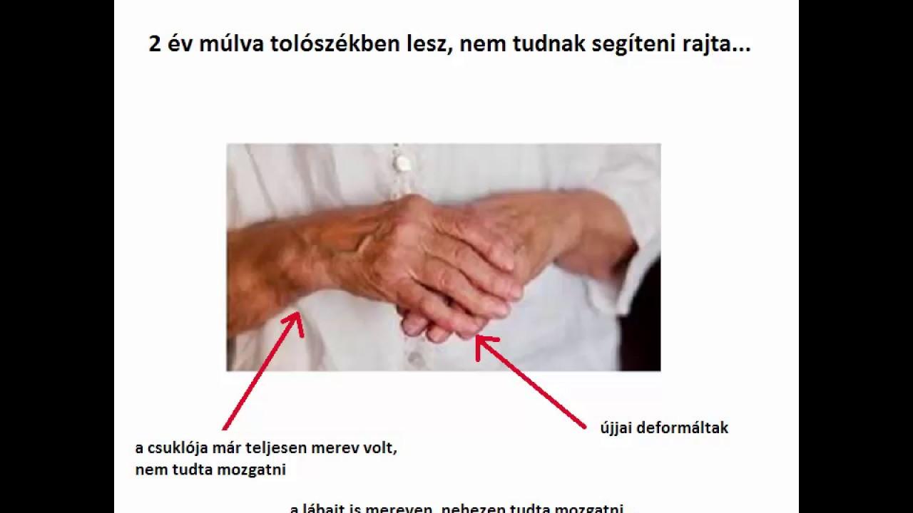 az ujjak ízületeinek ízületi gyulladásainak kezelése ízületi rák kezelése