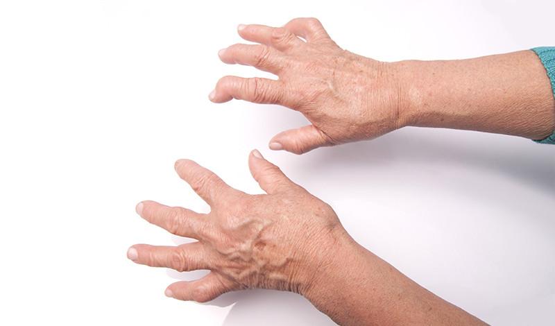 hogyan lehet kezelni az ujjak ízületeinek betegségeit csípőízületi krém
