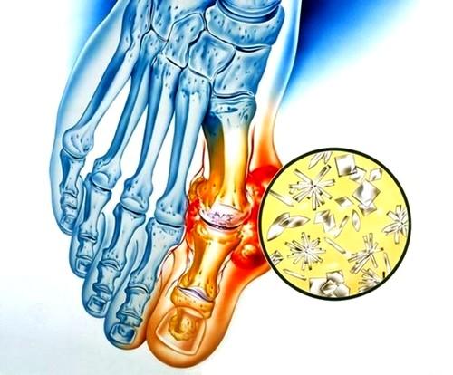tompa ízületi fájdalom oka mi a csípőízületek ízületi gyulladása