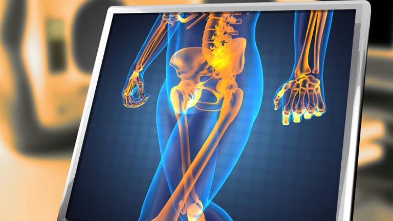 egyidejű fájdalom a csípő és a vállízületben artrózis és ízületi gyulladás típusai és kezelése