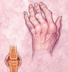 a kéz ízületi betegsége gyógyszerek együttes kezelésre