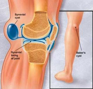 izületi kopás kezelése népi gyógymóddal az artrózisból származó lábödéma kezelése