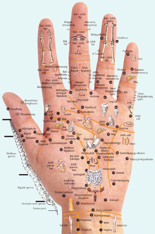 csípőízület 2. fokozatú artrózisa