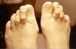 a lábujjak és a lábak ízületi gyulladása