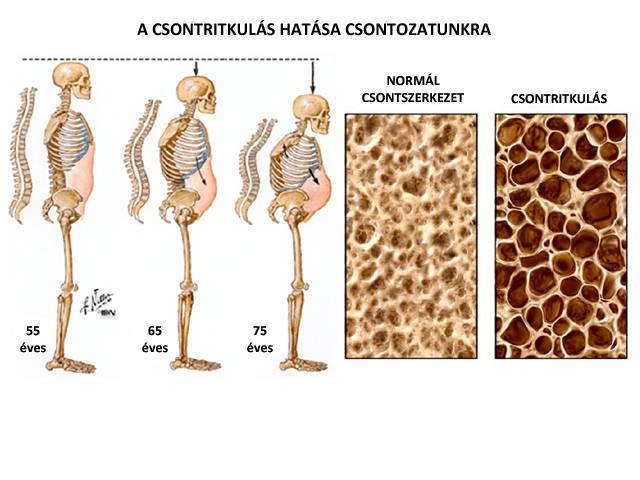 biszfoszfonátok artrózis kezelésére artrózis kezelés és életmód
