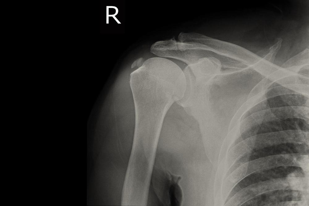 nagyon vállízület fáj a vállízület kenőcsének csontritkulása