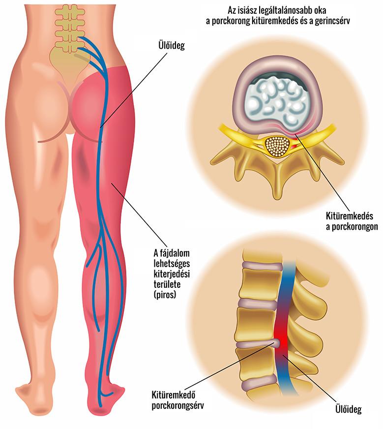 csípőideg-gyulladáskezelés gyógyszer osteochondrozis kezelésére m