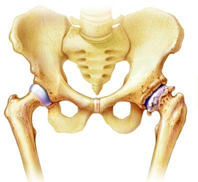 hogyan lehet enyhíteni a csípőízületi gyulladást kenőcs vagy tabletta ízületi fájdalmak esetén