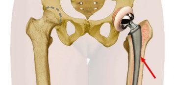 csípőízület ízületi gyulladása