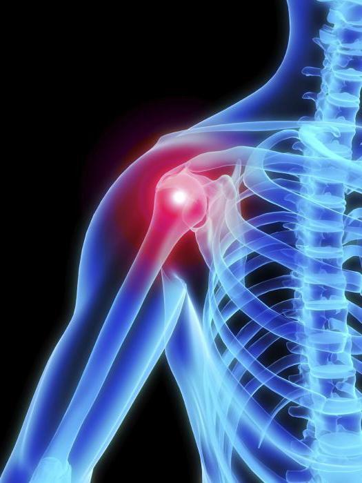 vállízület összeroppant kezelése térdízület mediopatellar redő szindróma hogyan kell kezelni