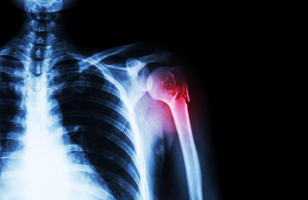 fájdalom és zsibbadás a csípőízületben