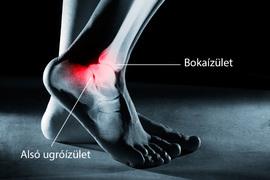a bokaízület fájdalma és duzzanata, mint kezelni