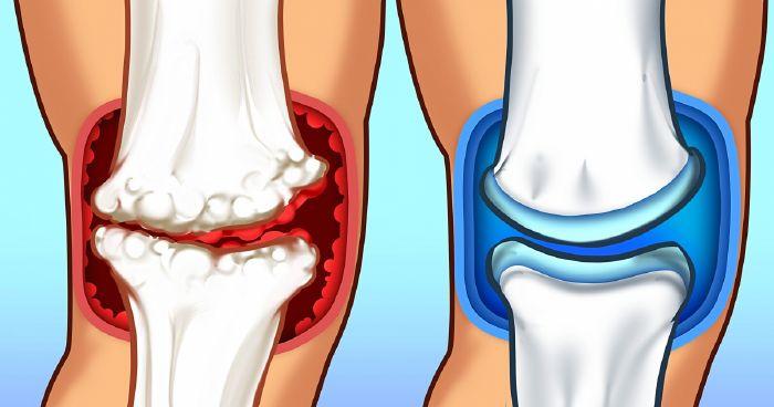 boka fájdalom előtt mag 30 az artrózis kezelésében
