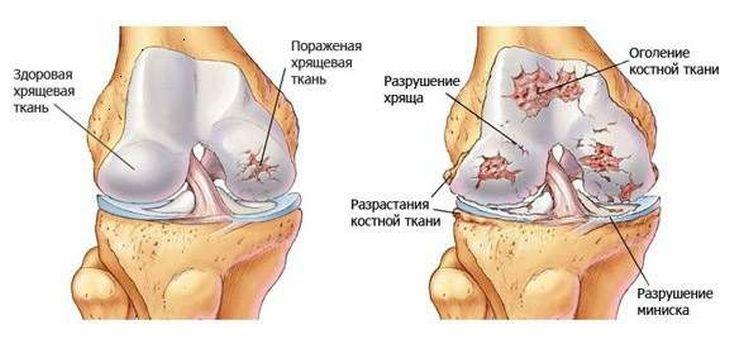 boka osteoarthritis kezelésére szolgáló gyógyszer