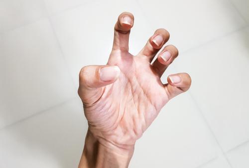 kéz fájdalom az ízületben, mit kell tenni mely ízületeket nem érinti a rheumatoid arthritis