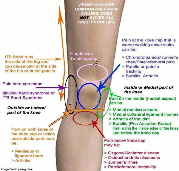 térdfájdalom belső oldalon éles fájdalom a lábban az ízületben
