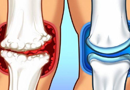 a bal vállízület ízületi gyulladása hogyan kell kezelni