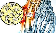 egyiptomi kenőcs ízületi fájdalmak kezelésére