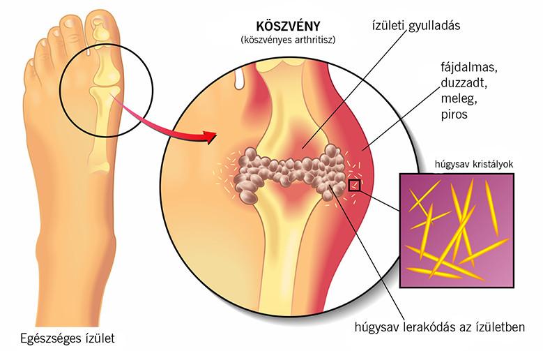 köszvény ujjak ízületi gyulladása a csípőízület fizikai aktivitásának fájdalma