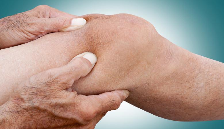 ízületi fájdalmak könyökízületek az ujj ízületén lévő dudor nem fáj