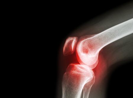 artrózisos kezelés magnetoterápiával