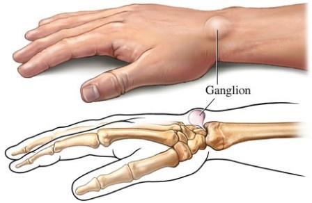 csukló fájdalom ütés térdszinovitis sérüléskezelés után