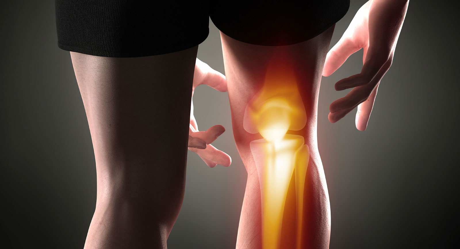 mit kell venni az ízületi betegséggel posztraumás artrosis és kezelése
